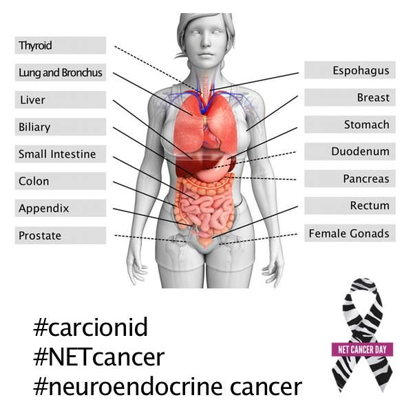 Neuroendocrine tumors net nets can arise in many