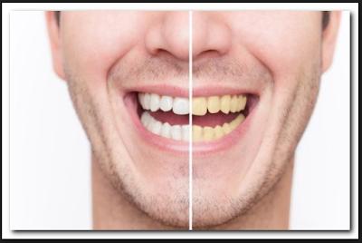 Cara Memutihkan Gigi Dengan Baking Soda Racikan Sendiri Tips