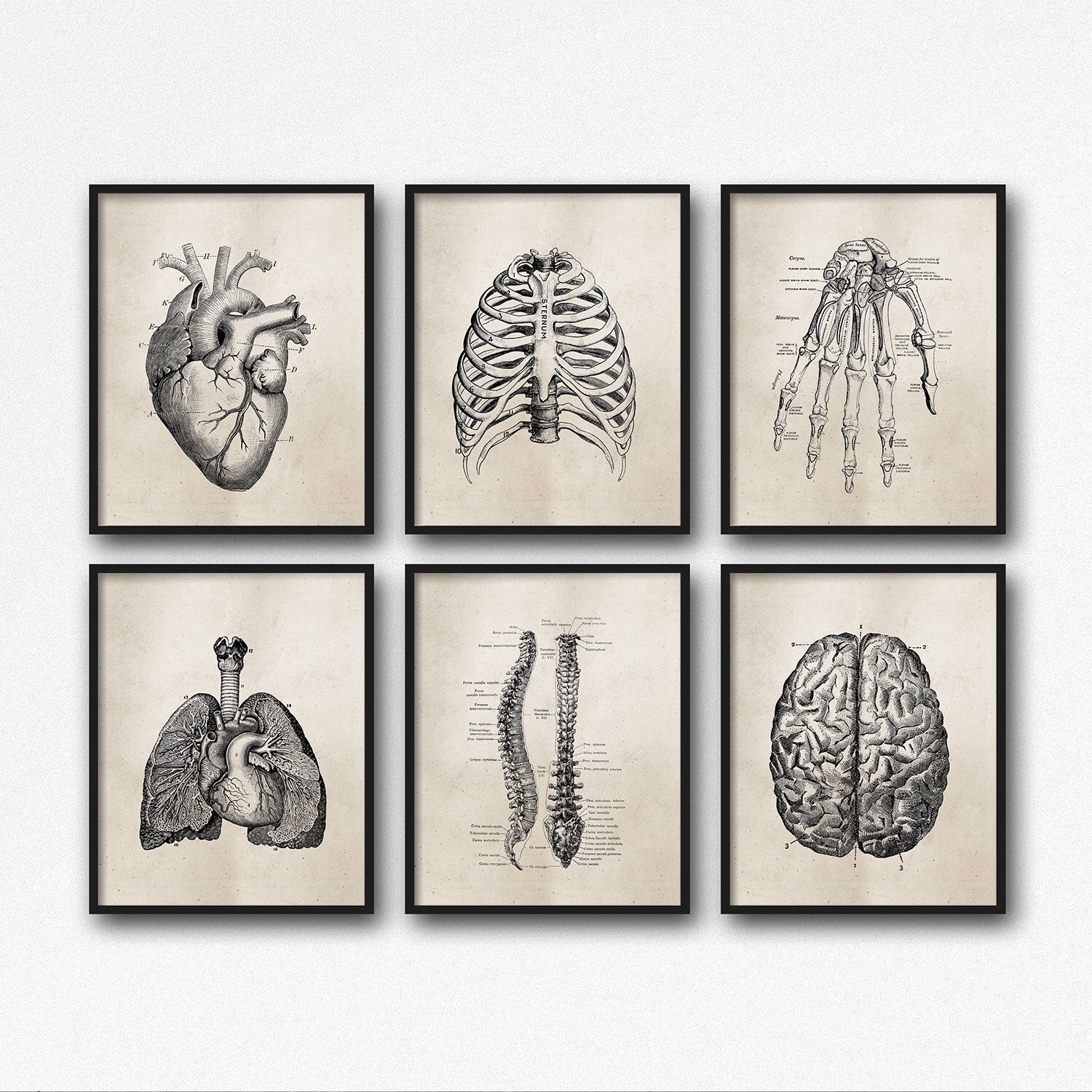 "Set of Six (6) Art Prints - 8X10"" or 11X14"" - Science Anatomy Wall Art - Neutral Vintage Effect - Medical Student Gift - Office - SKU:892 by ThePrintAnnex on Etsy https://www.etsy.com/listing/265247755/set-of-six-6-art-prints-8x10-or-11x14"