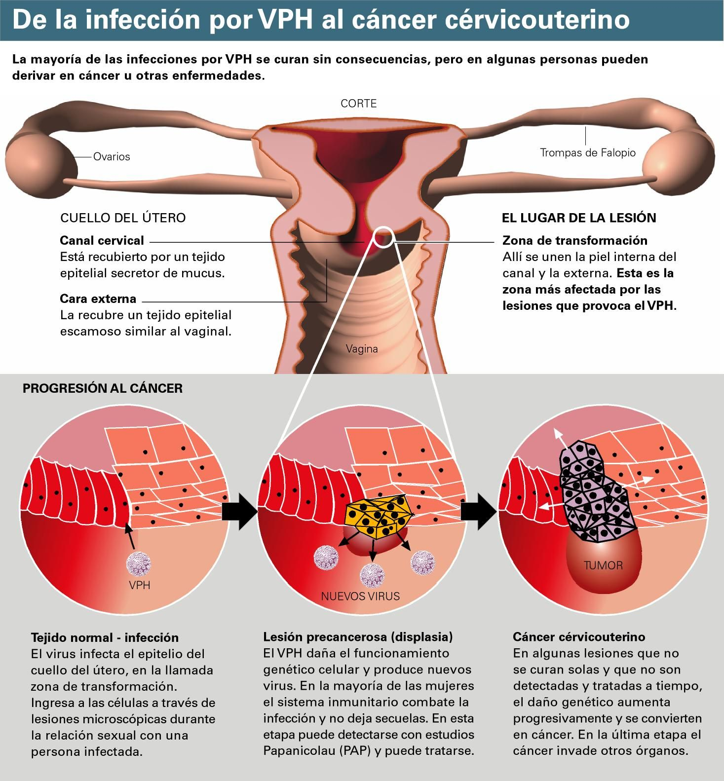 cancer de piel por papiloma)