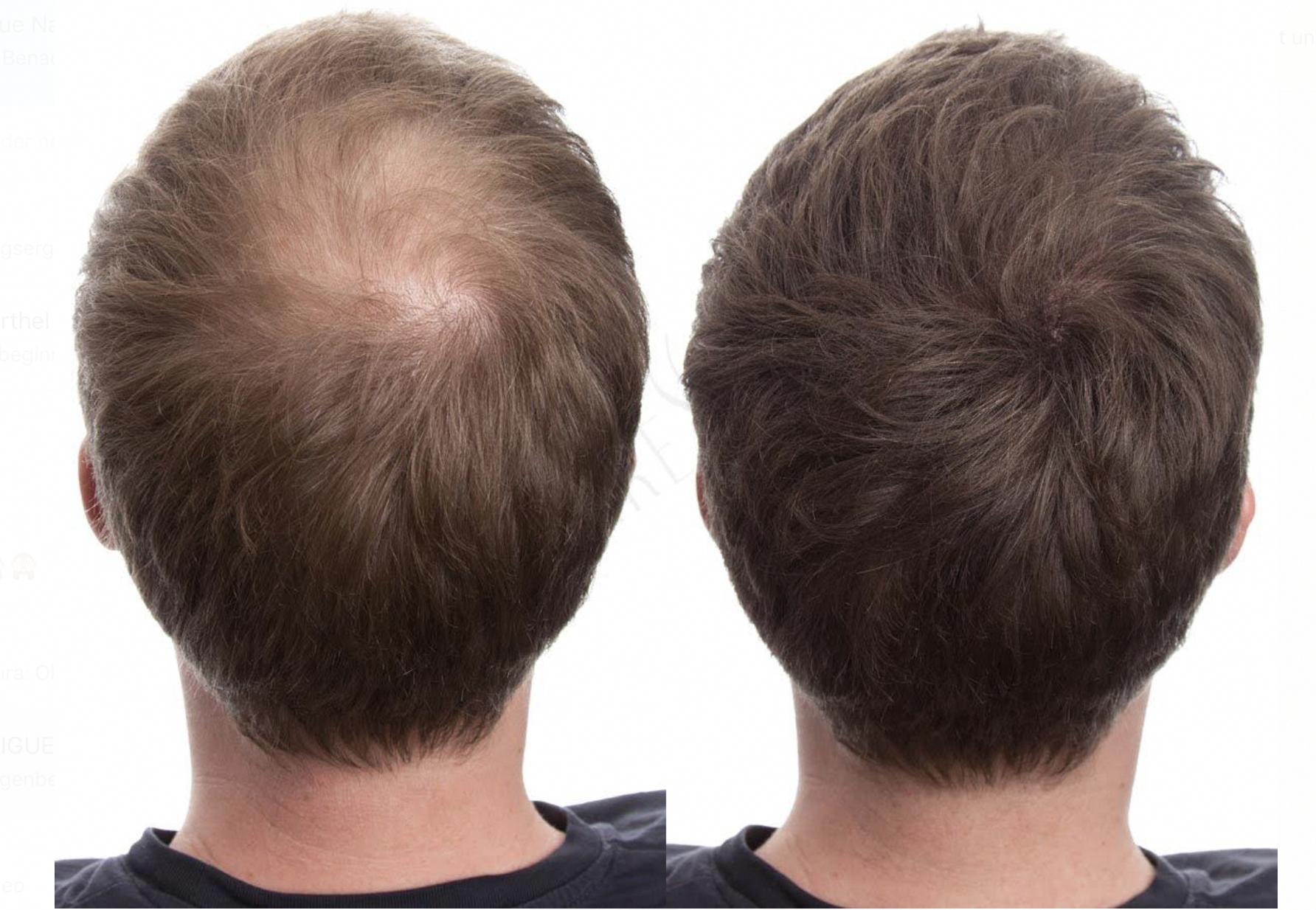 Nie Wieder Haarprobleme Dich Nervt Es Standig Kahle Stellen Am Kopf Zu Entdecken Dann Haben Wir Das Richtige Thick Hair Remedies Hair Fibers Hair Loss Bald