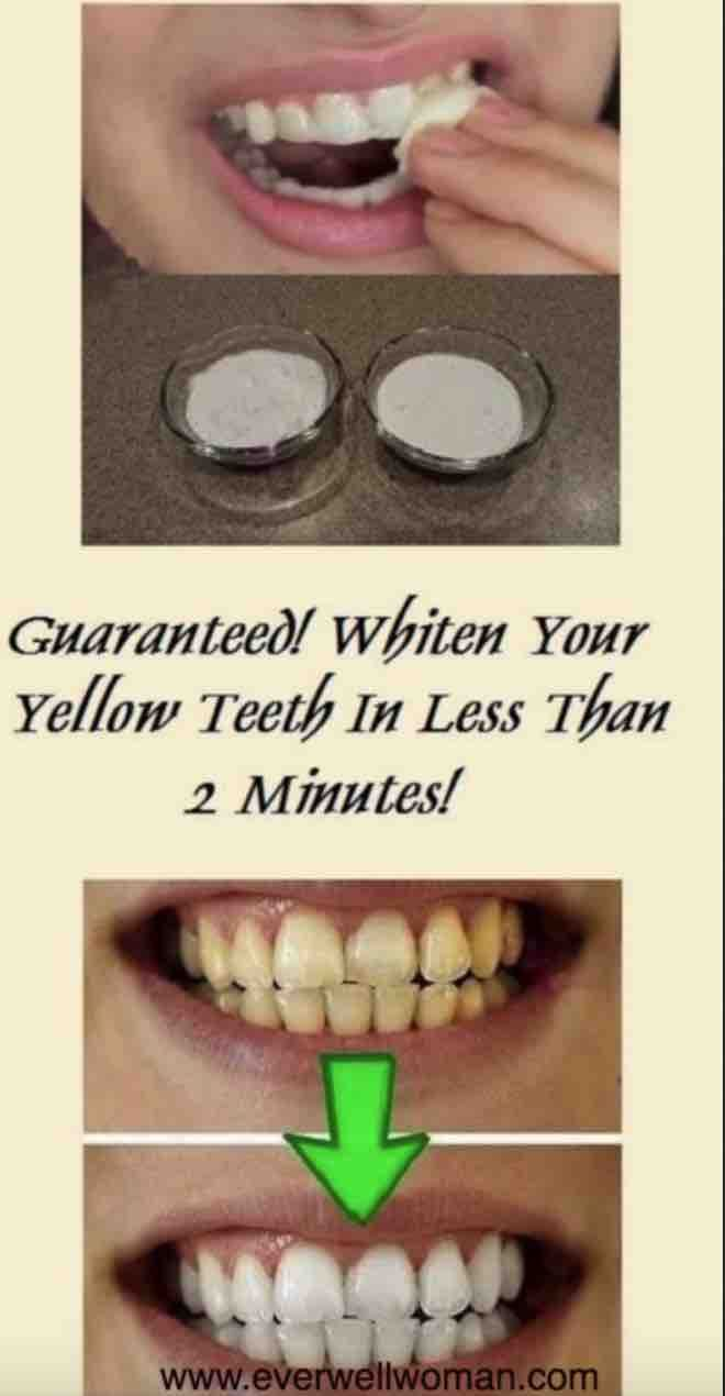 Whiten Your Teeth In Less Than 2 Minutes Guaranteed Results Set
