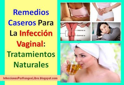 Remedios Caseros Para La Infeccion Vaginal: 7 Tratamientos Naturales