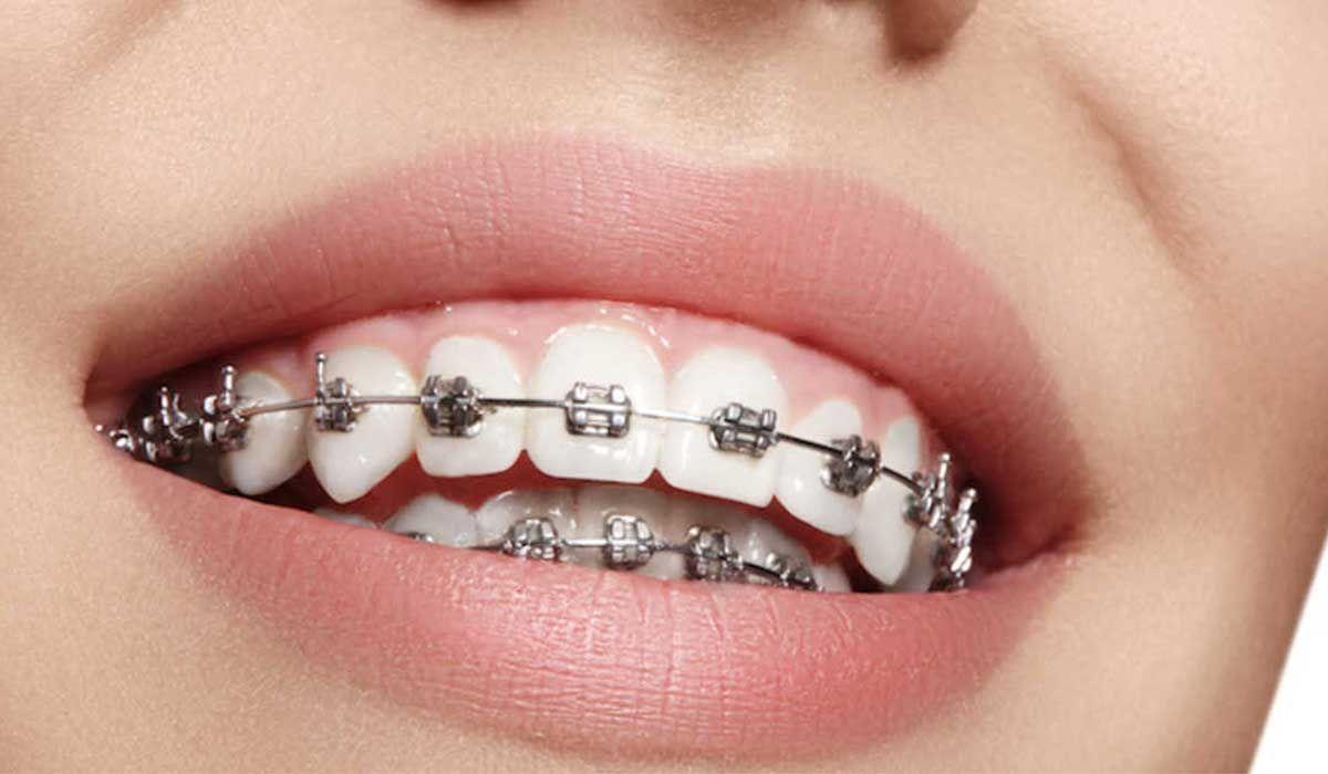 كيف يتم تركيب تقويم الأسنان Dental Braces Teeth Braces Diamond Teeth