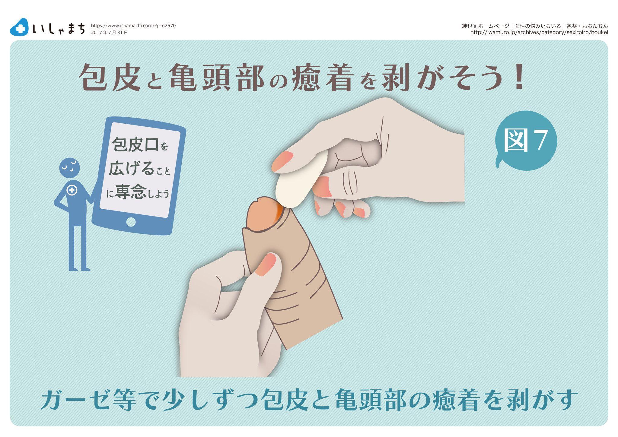 包皮と亀頭部の癒着を剥がそう Infographics 赤ちゃん教育 赤ちゃん 成長 包皮