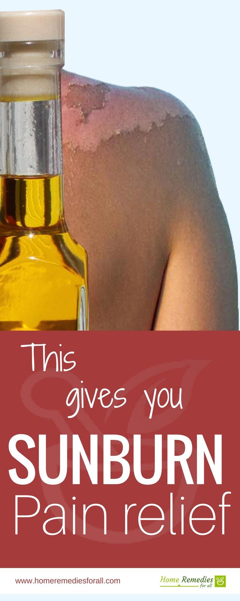 apple cider vinegar for sunburn