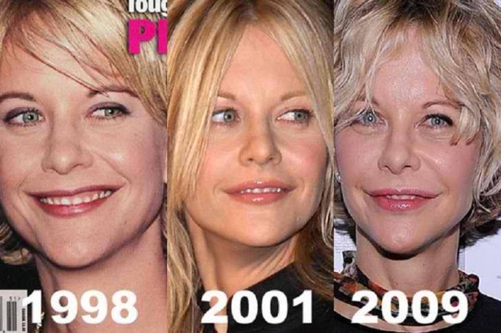 Meg Ryan Plastic Surgery Timeline Before After