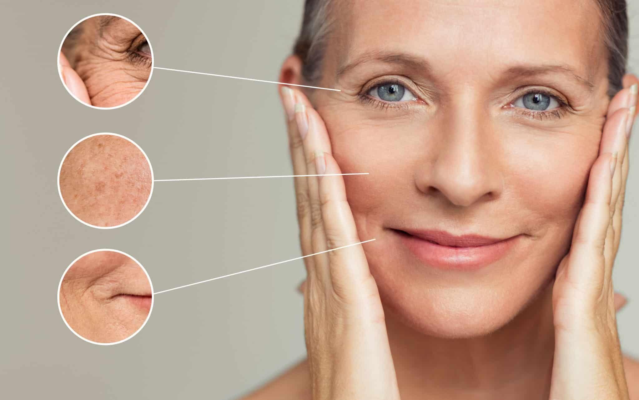Jak poznáte, že vám vadí cukr, alkohol, lepek nebo mléko? Prohlédněte si svůj  obličej! - vozeli.com
