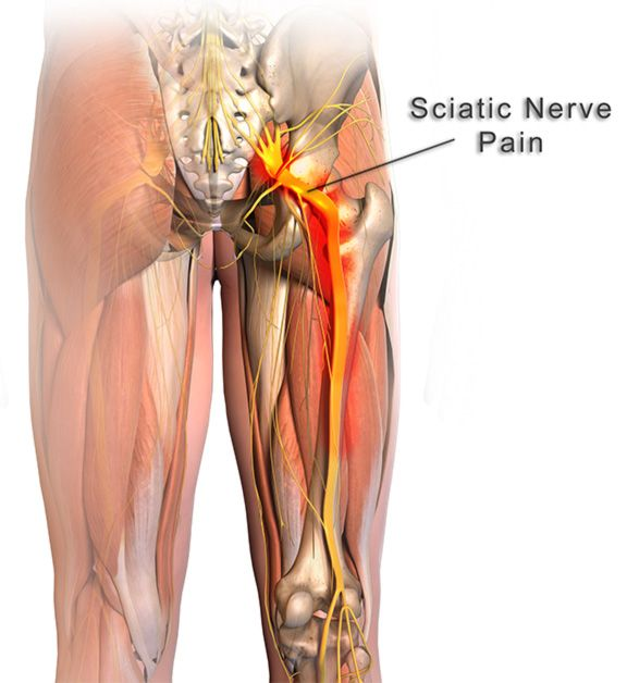 Sciatic nerve anatomy nerve pain sciatica and leg pain the longest nerve in the human body the sciatic nerve may become irritated by a altavistaventures Choice Image