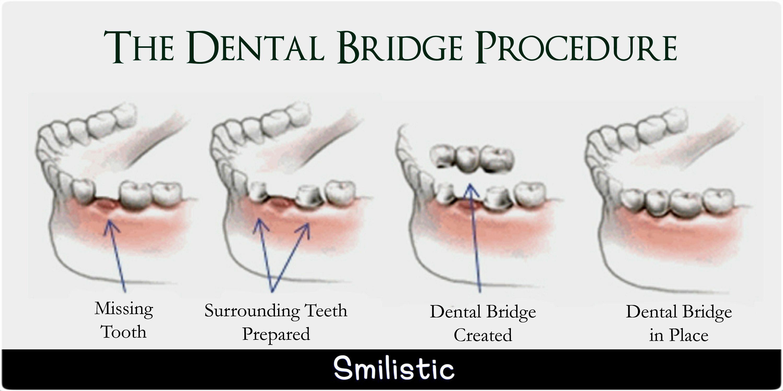 9 best Dental Bridge images on Pinterest | Bridges, Dental ...