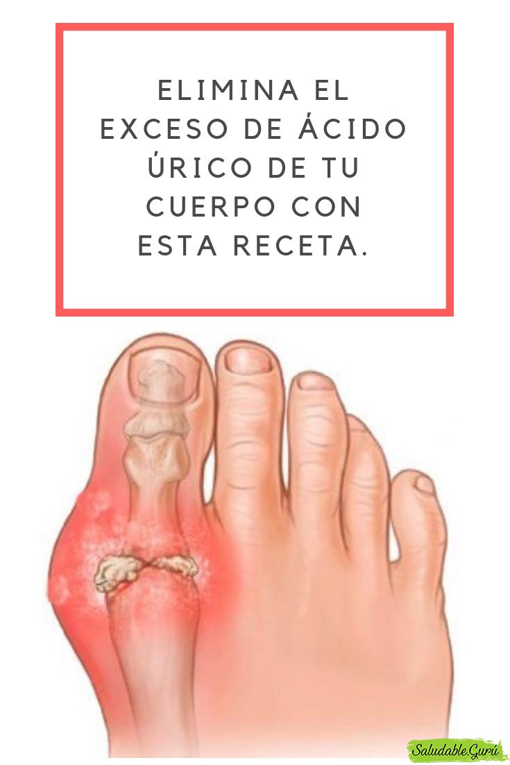 artritis linear unit pies biodescodificacion