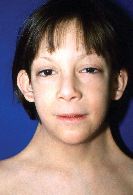 Síndrome de Turner: causas sintomas e tratamentos ...