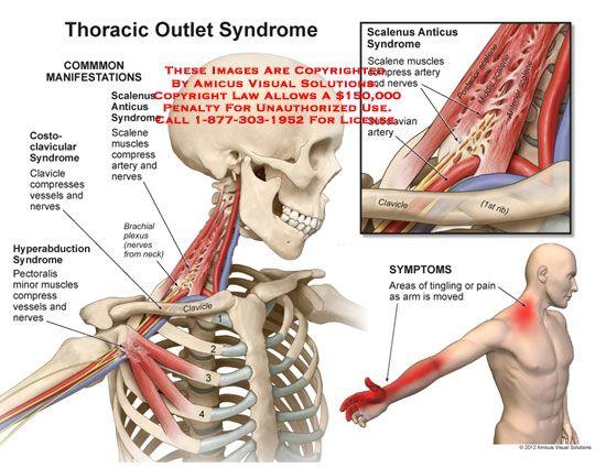 Síndrome de la salida torácica | En forma | Pinterest | Salud ...