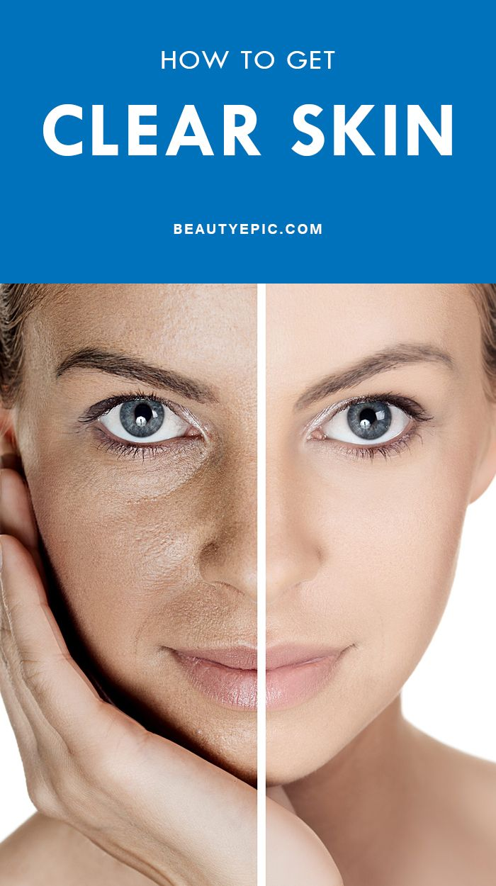 How to Get Clear Skin Naturally at Home  Clear skin naturally