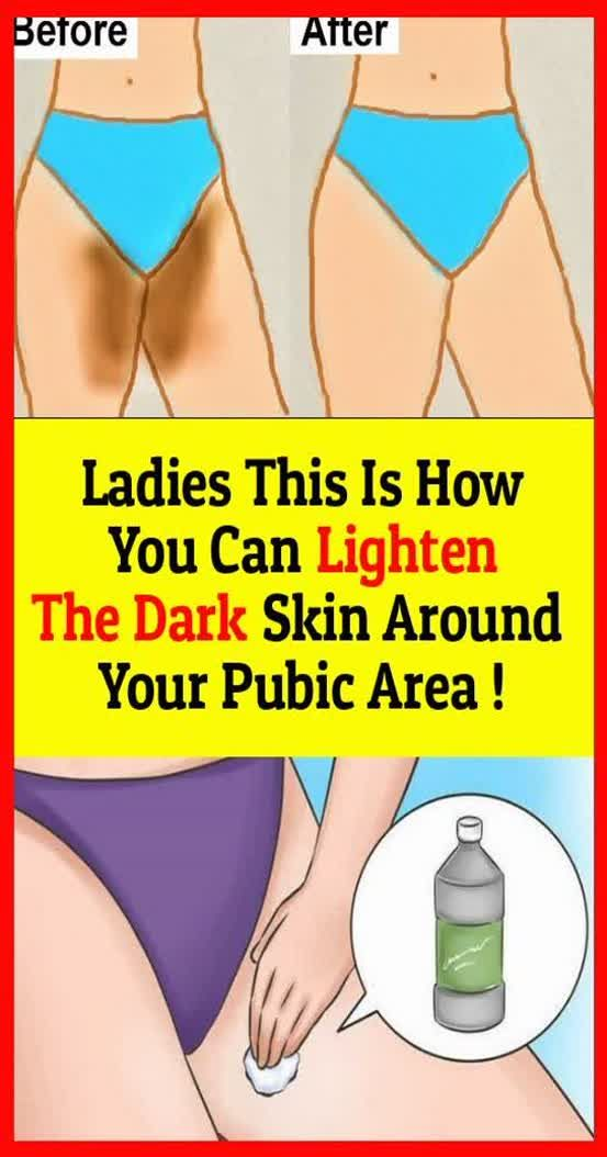 Ladies This Is How You Can Lighten The Dark Skin Around Your Pubic Area…