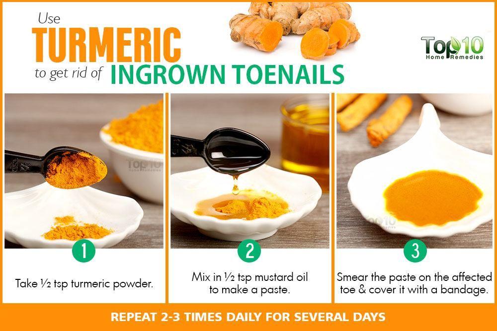 Home Remedies for Ingrown Toenails | Nails | Ingrown toe nail, Toe ...