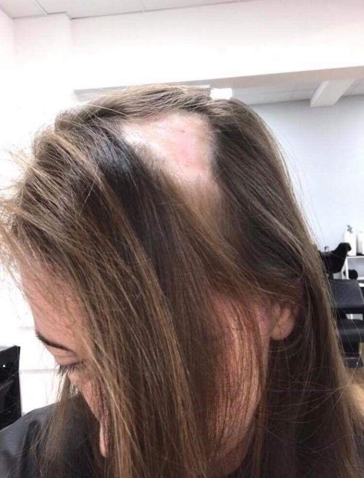 Solution for female hair loss: Hair-Solved | Hair loss ...