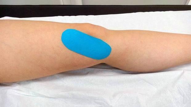 Tendinitis Pata De Ganso Tratamiento Pata De Ganso Tendinitis Rodillas