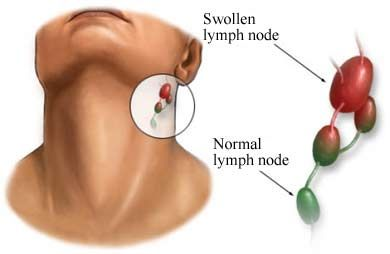 B4tea: How to reduce swollen lymph nodes in neck? | Swollen lymph nodes, Lymph  nodes, Lymph glands