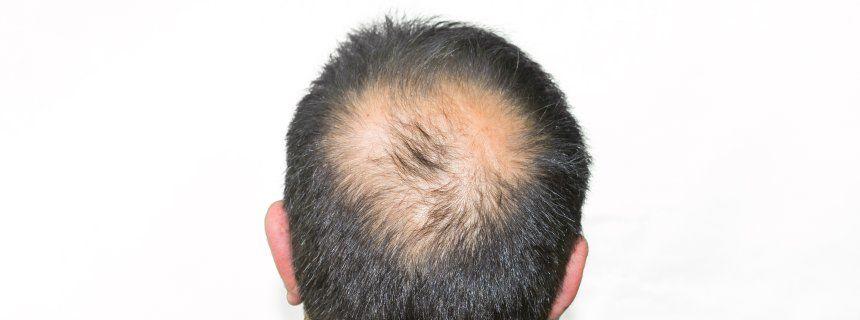 Frisuren für Männer: Glatze? Kein Problem!