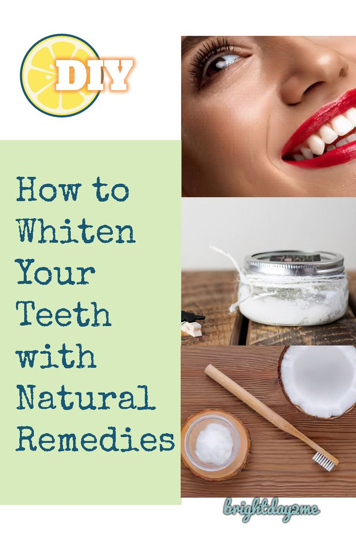 Here provides you the best homemade recipes to get whiter