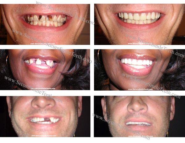 Upper Secure Smile Cosmetic Fake Teeth Veneer