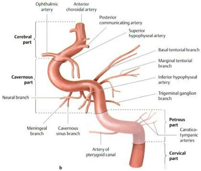 internal carotid artery … | Blood | Pinte…