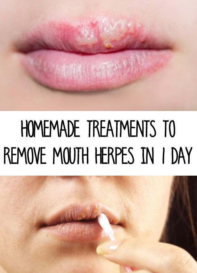 Pin on Herpes Cure
