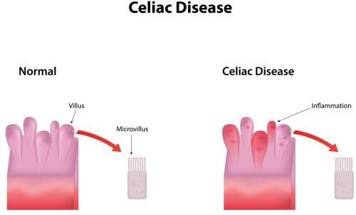 Regular Growth Screening May Help Detect Celiac Disease in ...