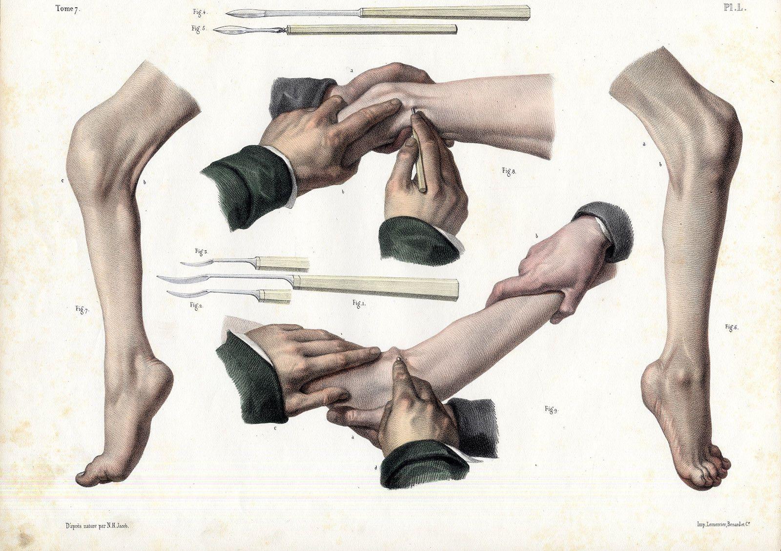 2 Antique Medical Anatomy Prints-TENOTOMY-SURGICAL INSTRUMENTS-P L ...