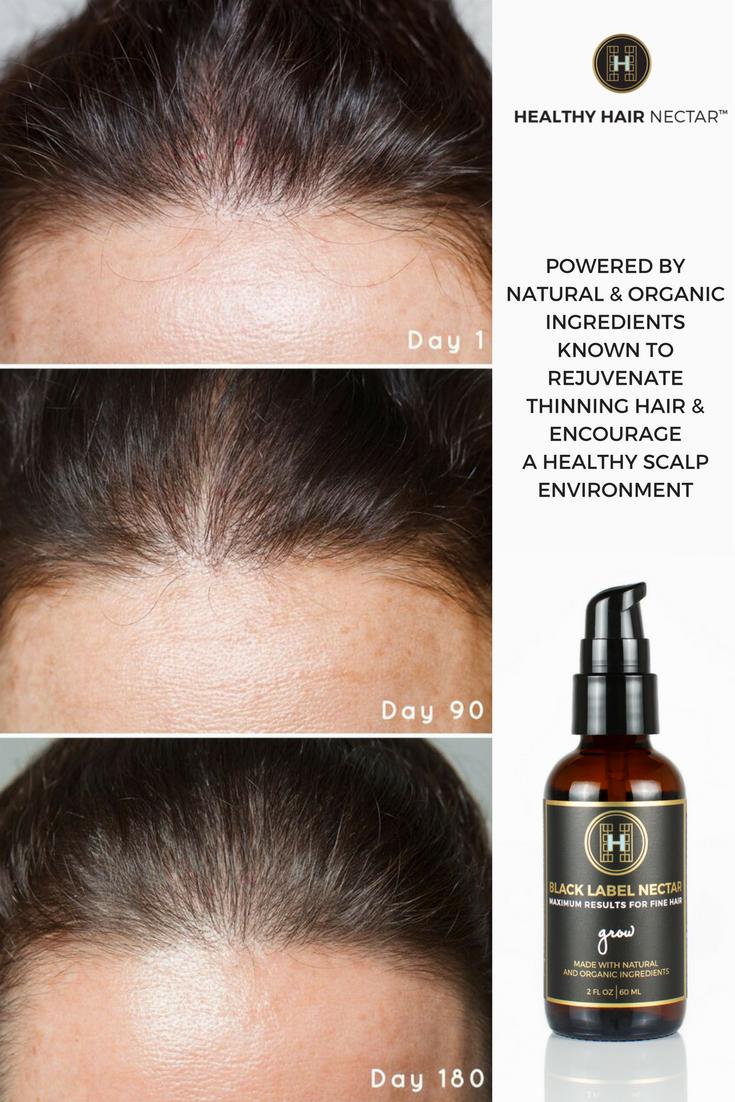 Grow Hair Thin Hair Thinning Hair Treatment Natural Hair