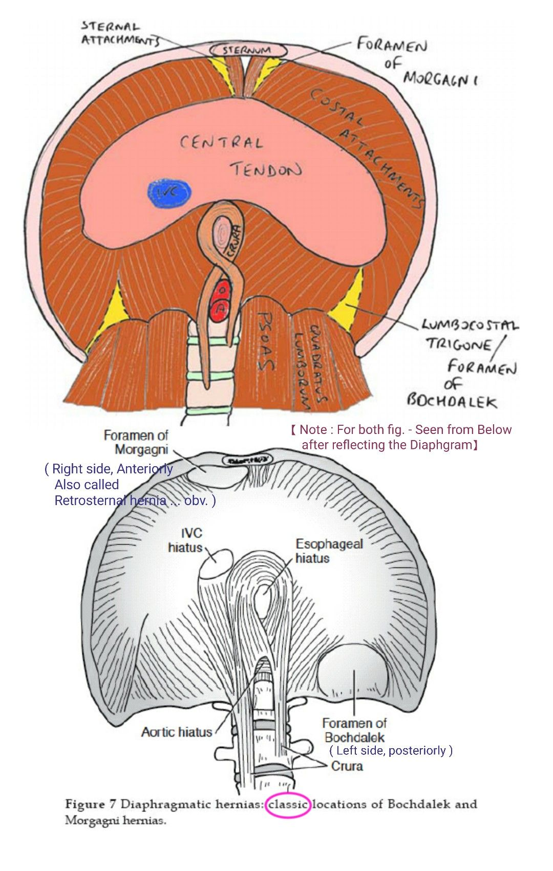 Diaphragmatic hernia Location of Bochdalek &