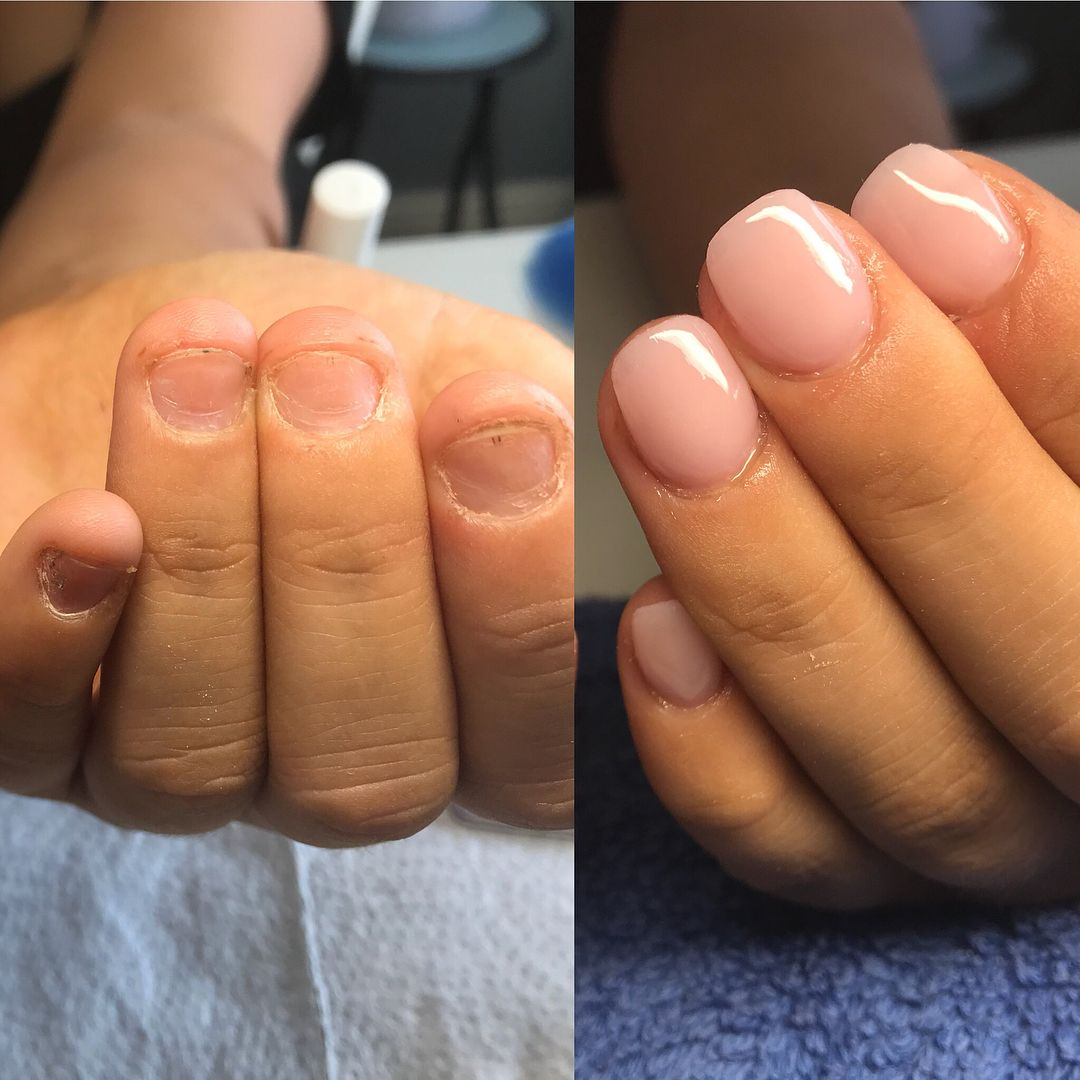 Lets Talk Bitten Nails So I Get Approached A Lot By People Who Ask Can You Do Anything With These Natural Acrylic Nails Short Gel Nails Short Acrylic Nails