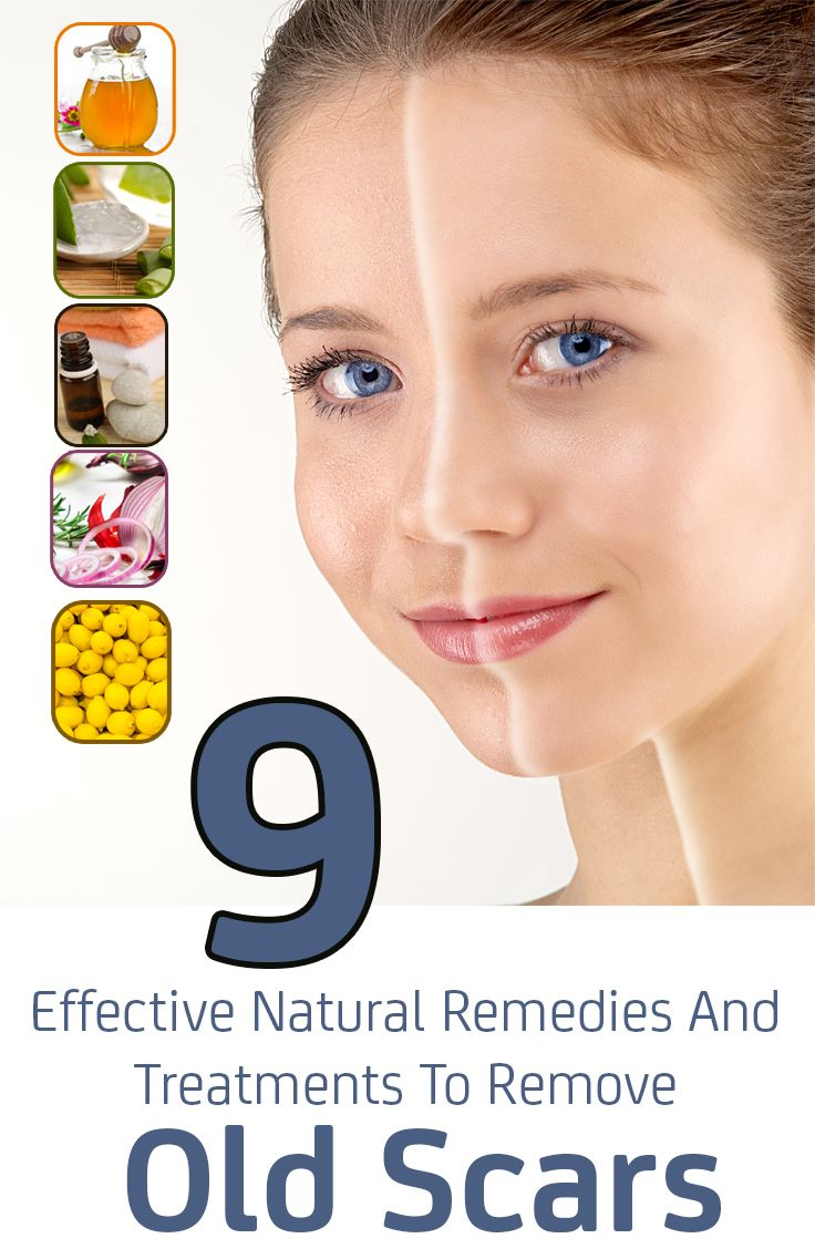 9 Effective Natural Remedies And Treatments To Remove Old Scars