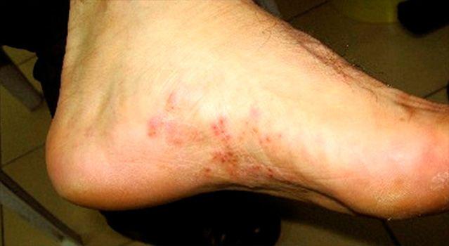 como detectar los hongos en los pies