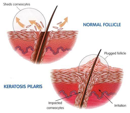 how to help keratosis pilaris