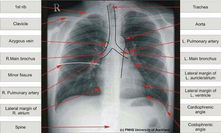 Chest Xray Radiology Radiology Schools Radiology Student