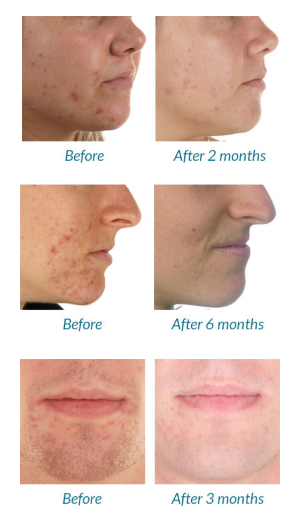 Blue Light Therapy Acne Before And After