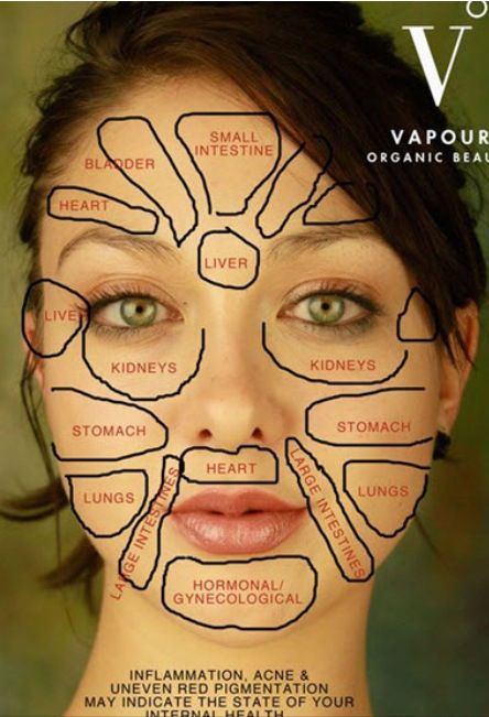 Chinese Face Map How Organs Link To Your Face Acne Pinterest - Acne face map organs