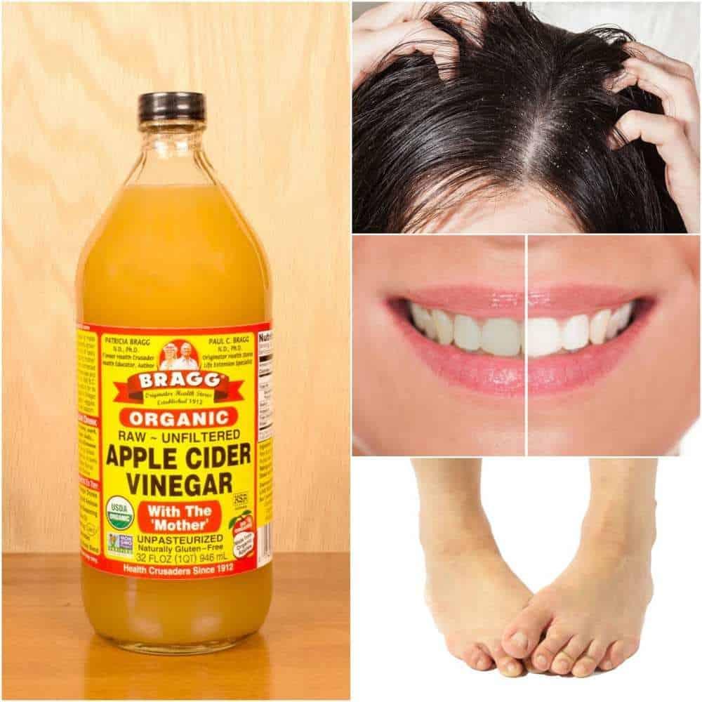 8 Ways Apple Cider Vinegar May Improve Your Life Everyday Cheapskate Apple Cider Vinegar Apple Cider Vinegar Drink Apple Cider Vinegar Health