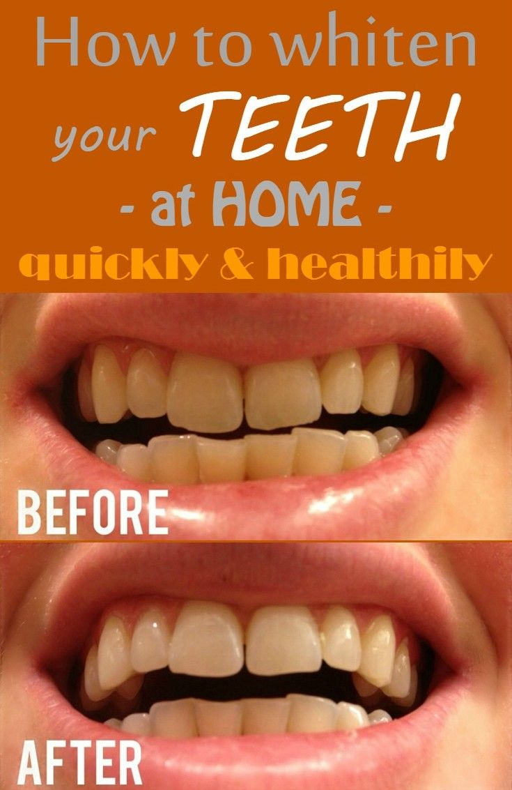 How To Whiten Your Teeth At Home Quickly And Healthily