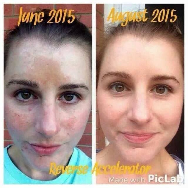 PREGNANCY MASK BE GONE! We Don't Just Get Dark Spots From