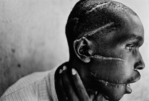 Rwanda, June 1994.  Hutu man mutilated by the Hutu 'Interahamwe' militia, who suspected him of sympathizing with the Tutsi rebels.  Photo by James Nachtwey.