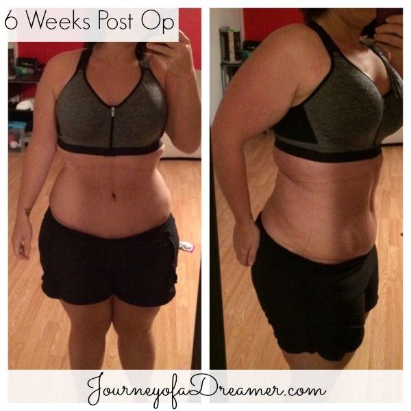6 Weeks Post Op Abdominoplasty Update Abdominoplasty Post Op Tummy Tucks