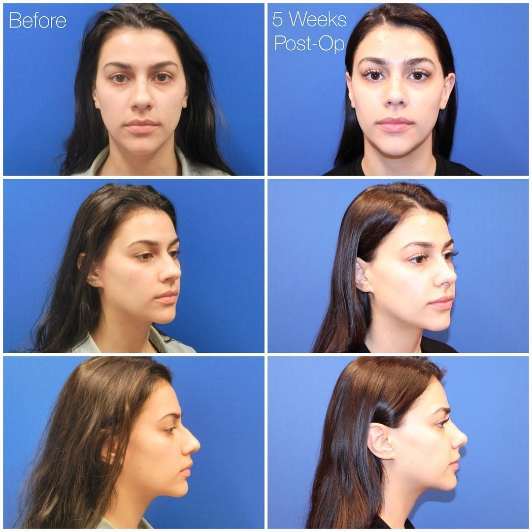 New The 10 Best Home Decor With Pictures Patient Update My Patient Is Now One Month Post Op From Rh Rhinoplasty Surgeon Rhinoplasty Surgery Rhinoplasty