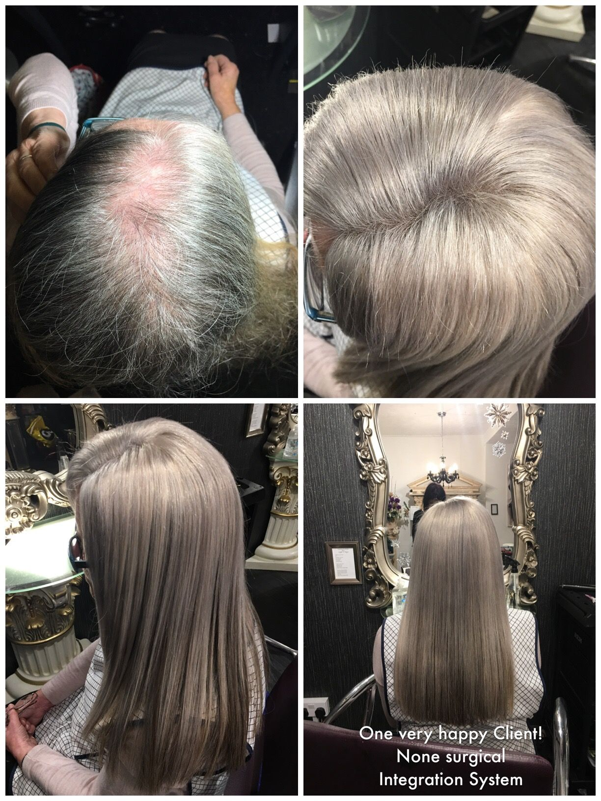 Our Fabulous Mesh Volumizer Hair Integration System Hep With Alopecia Thinning Hair And Tric Tape In Hair Extensions Hair Replacement Types Of Hair Extensions