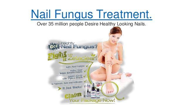 ZetaClear Nail Fungus Treatment.