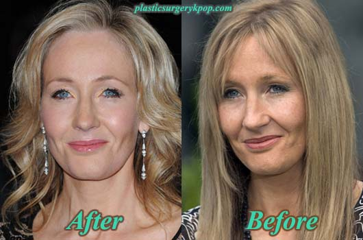 JK Rowling Plastic Surgery Picture | Facelift without