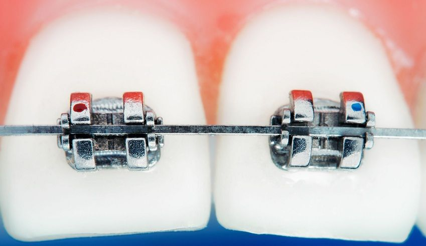 Are you recently wired braces? Yes And Do Braces Hurt When Tightened ...
