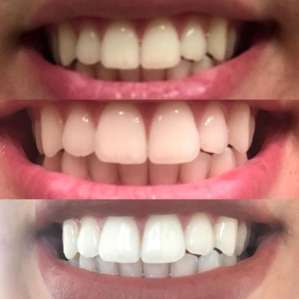 Pin On Teeth Whitener